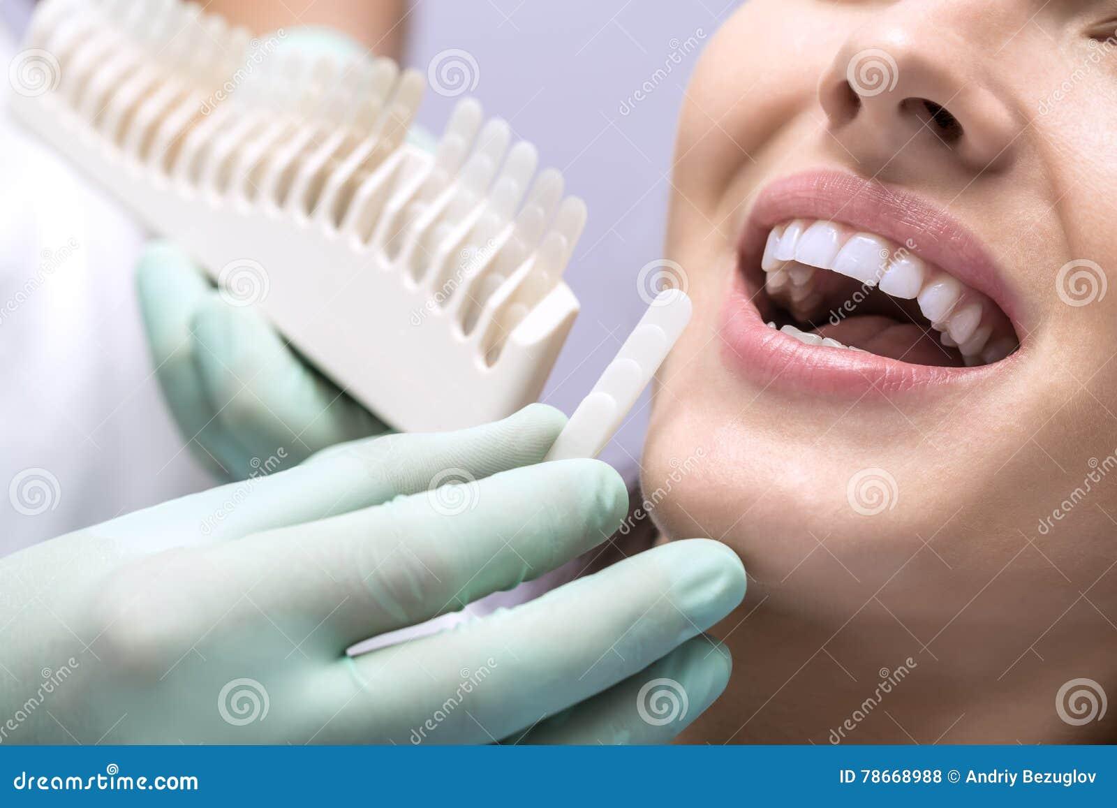 Teeth Color Comparison Stock Photo Image Of Medicine 78668988