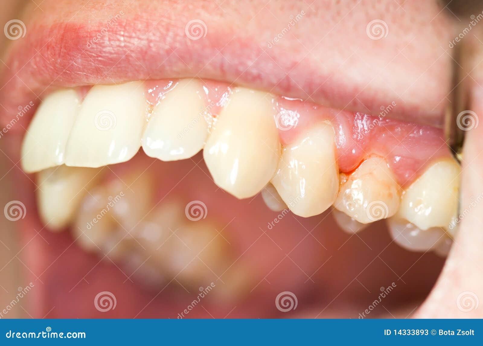 Teeth And Gingivitis Stock Photos Image 14333893