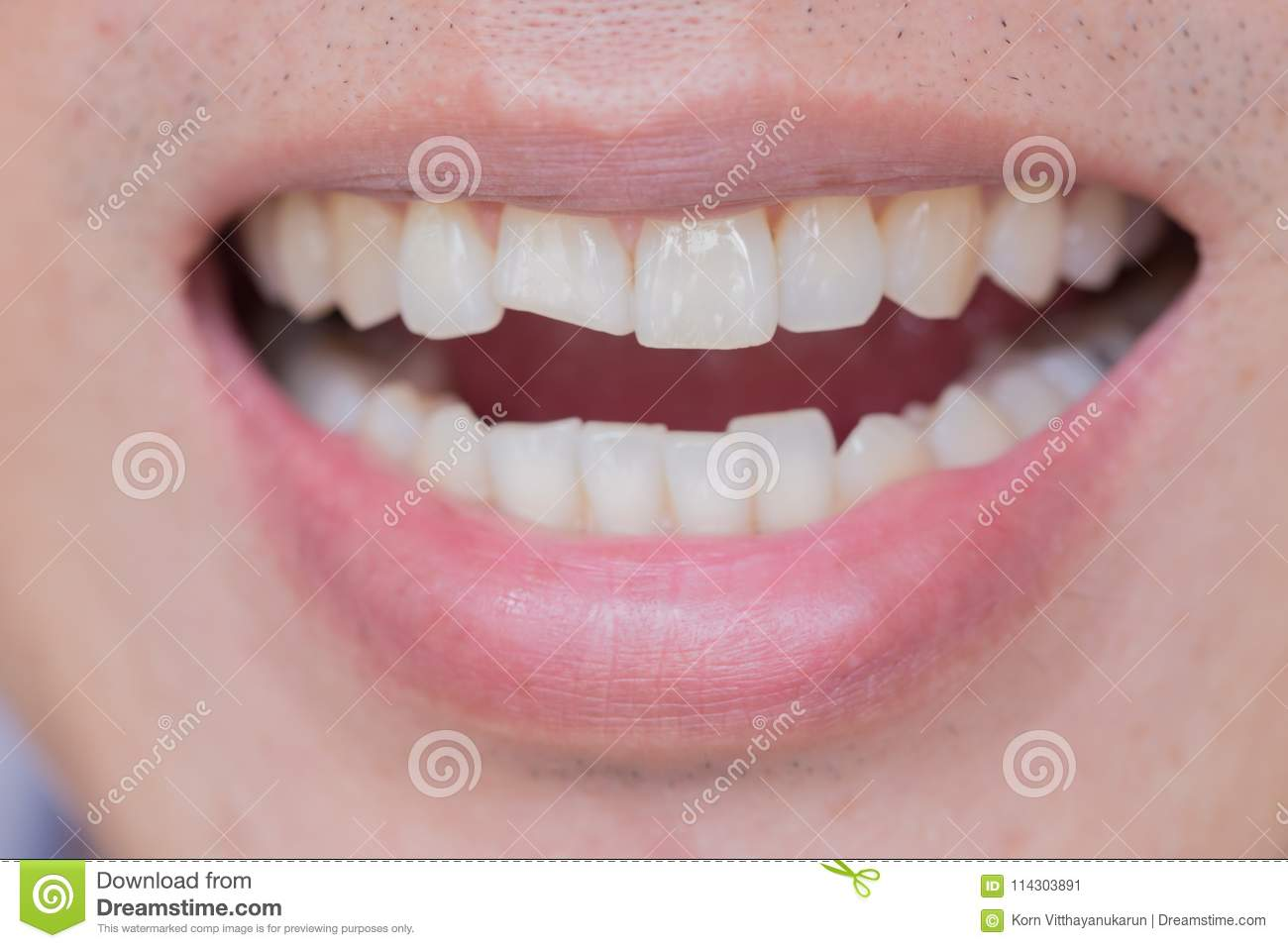 Teeth Injuries or Teeth Breaking in Male. Trauma and Nerve Damage of injured tooth