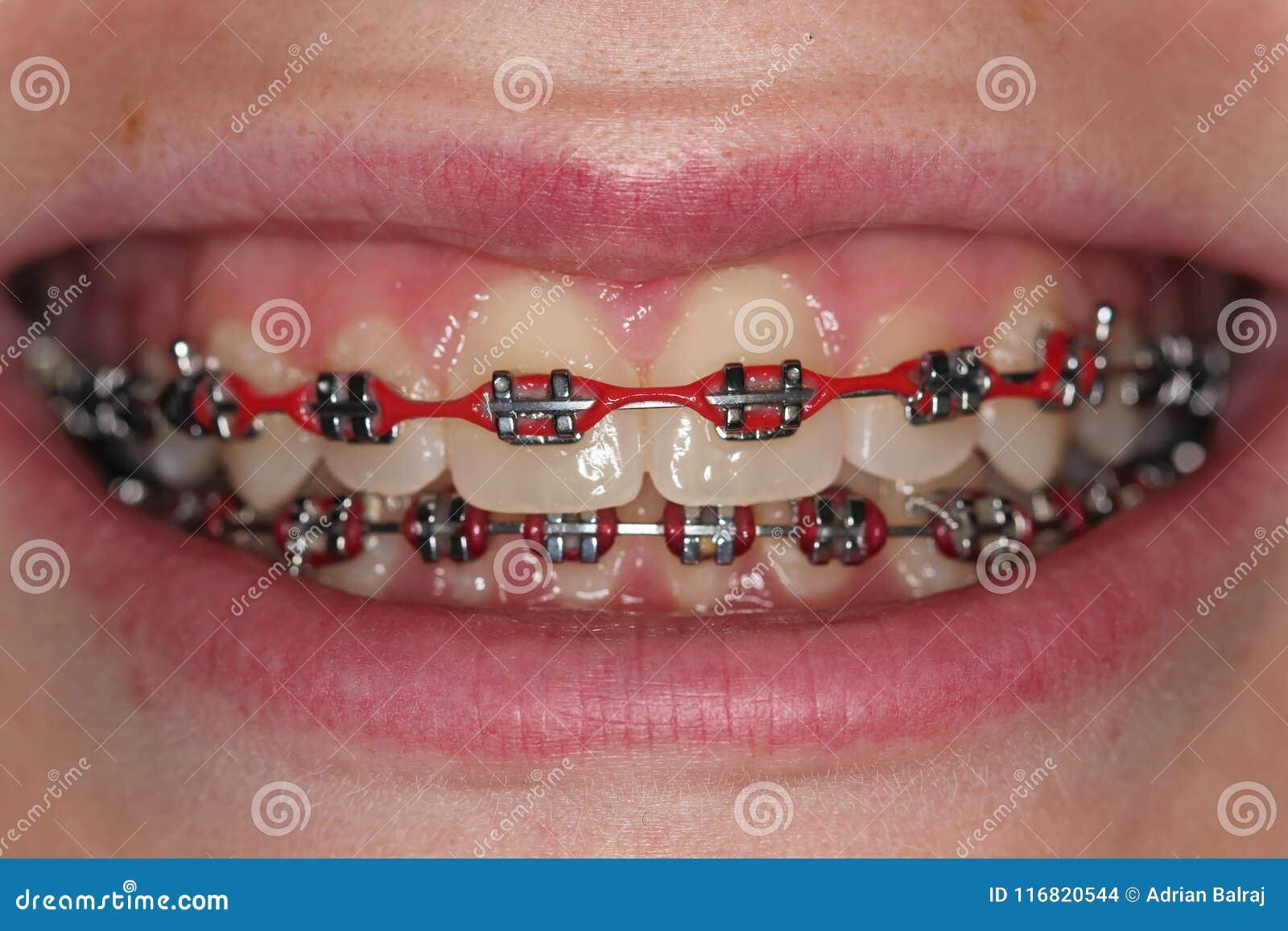 Teen With Red Metal Braces Orthodontics Brackets Stock Photo Image