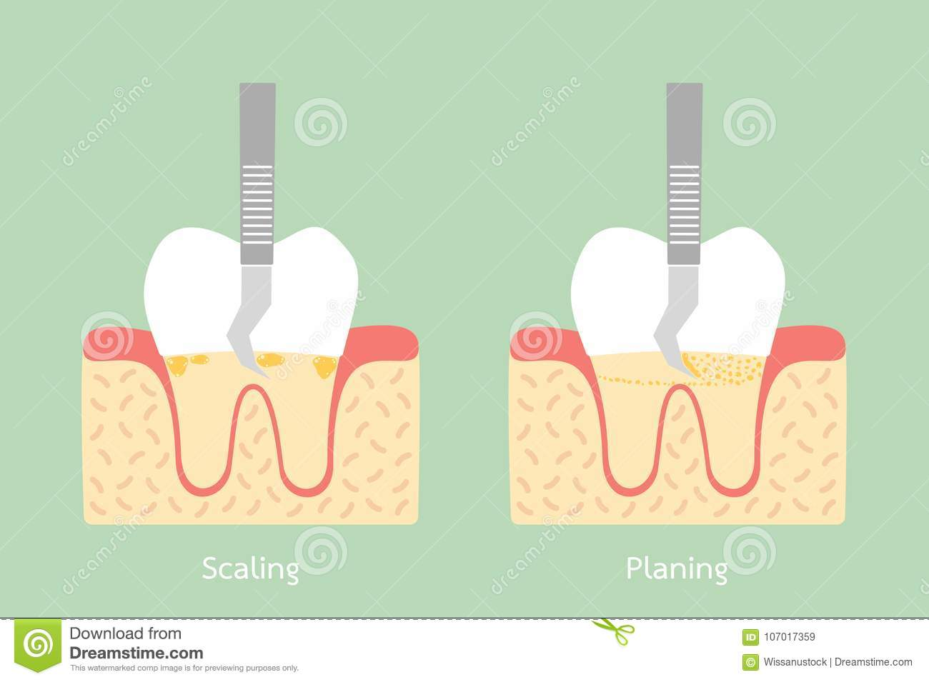 Teeth Scaling - Dental Plaque Removal, Anatomy Structure Including ...