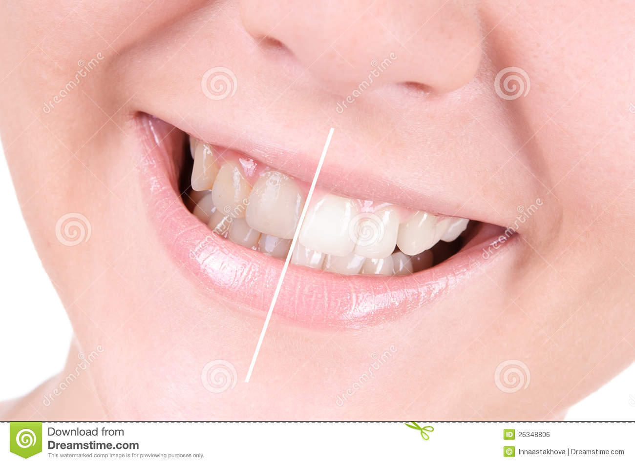 teeth-whitening-dental-care-26348806.jpg