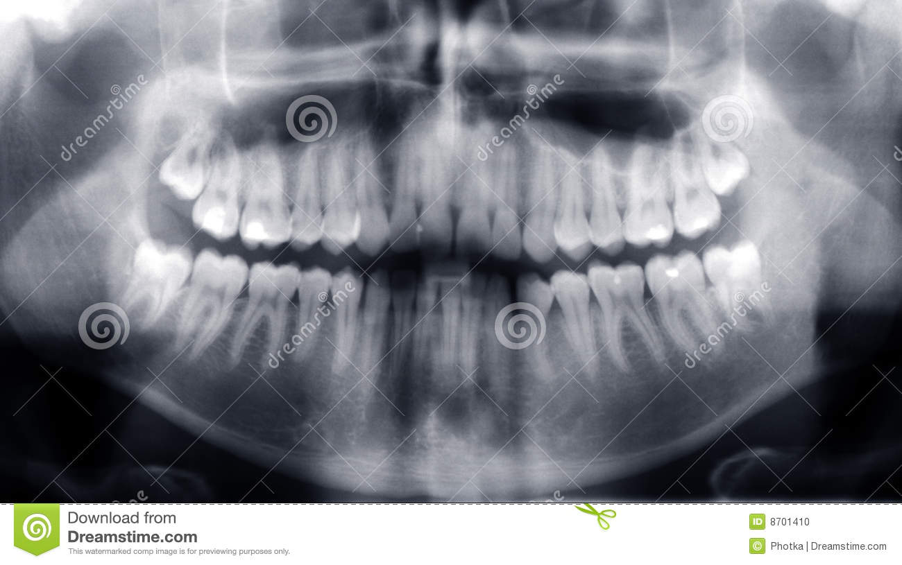 xray of front teeth - photo #13