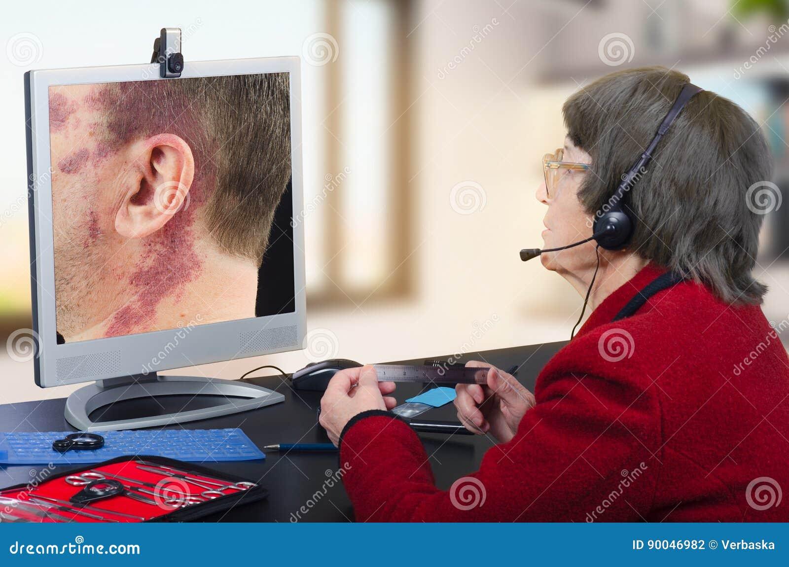Telemedicine dermatolog patrzeje dużego birthmark