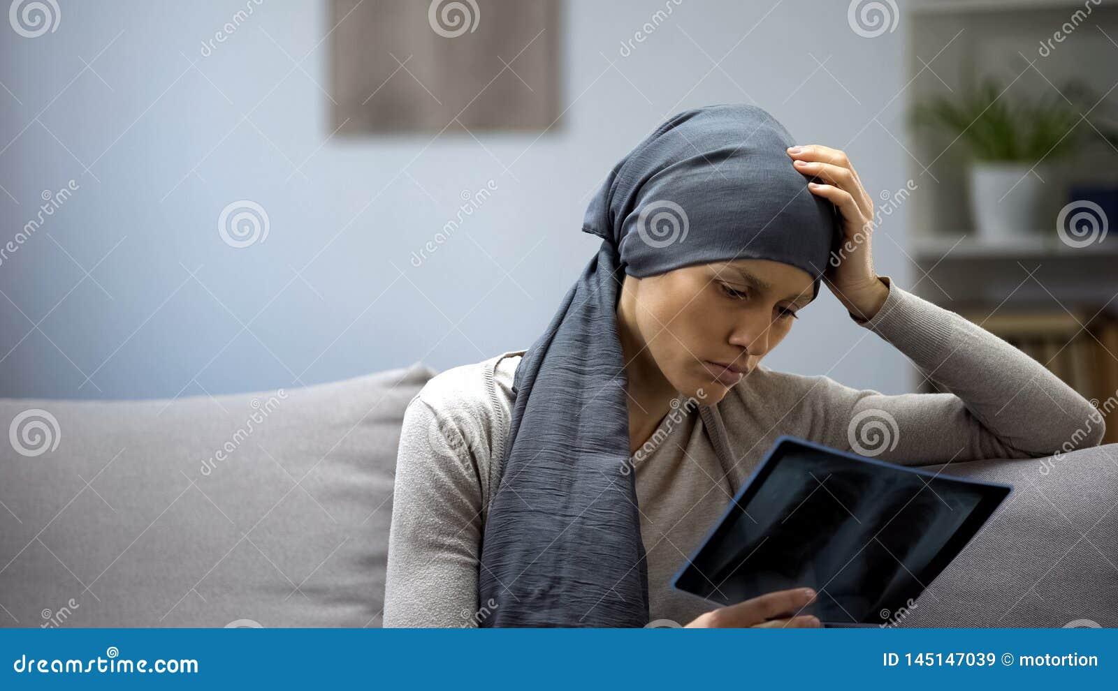 Teleurgestelde vrouw die met longkanker x-ray, ondoeltreffende behandeling bekijken