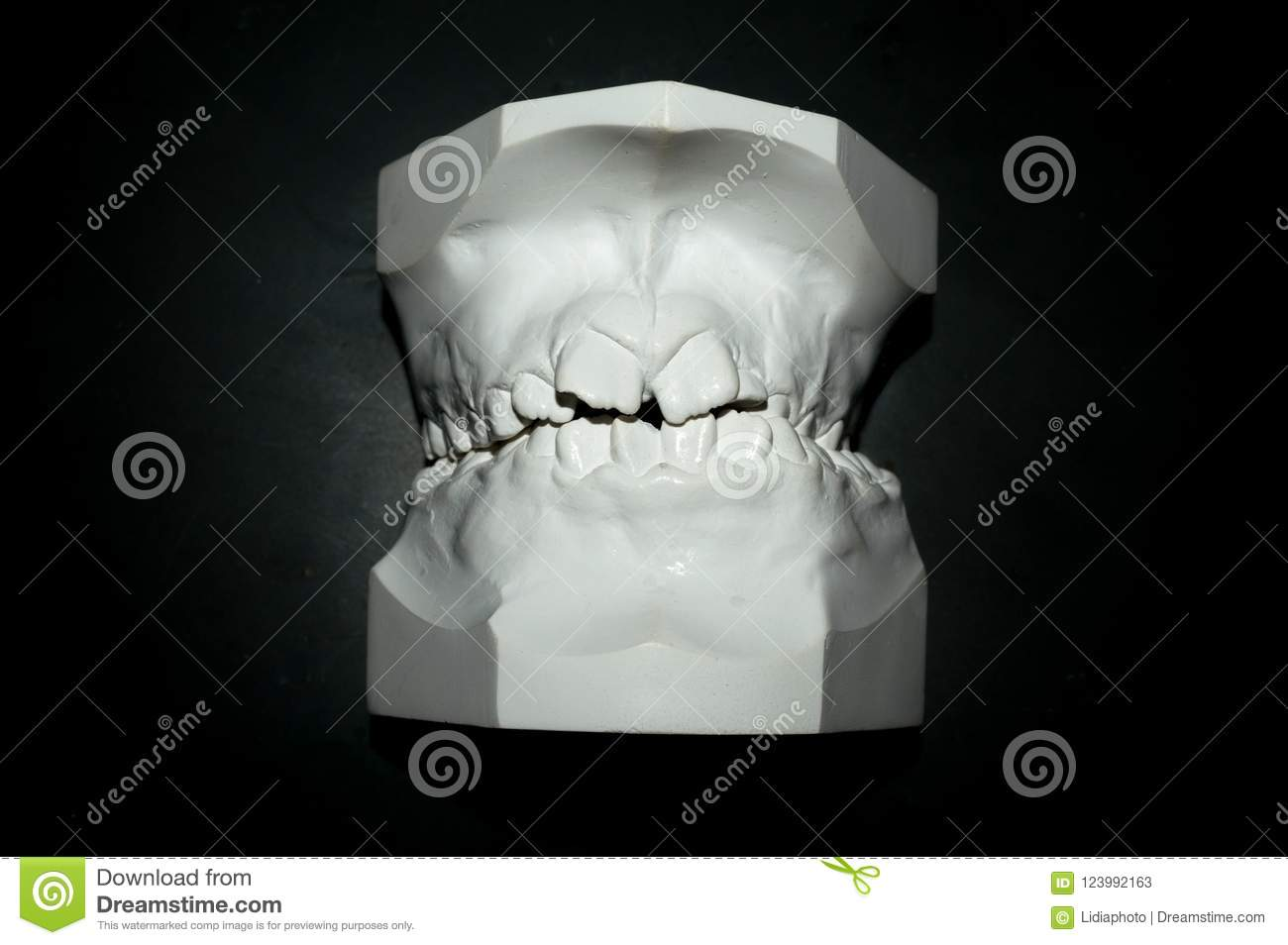 Template Of The Mouth Of A Patient For The Placement Of An
