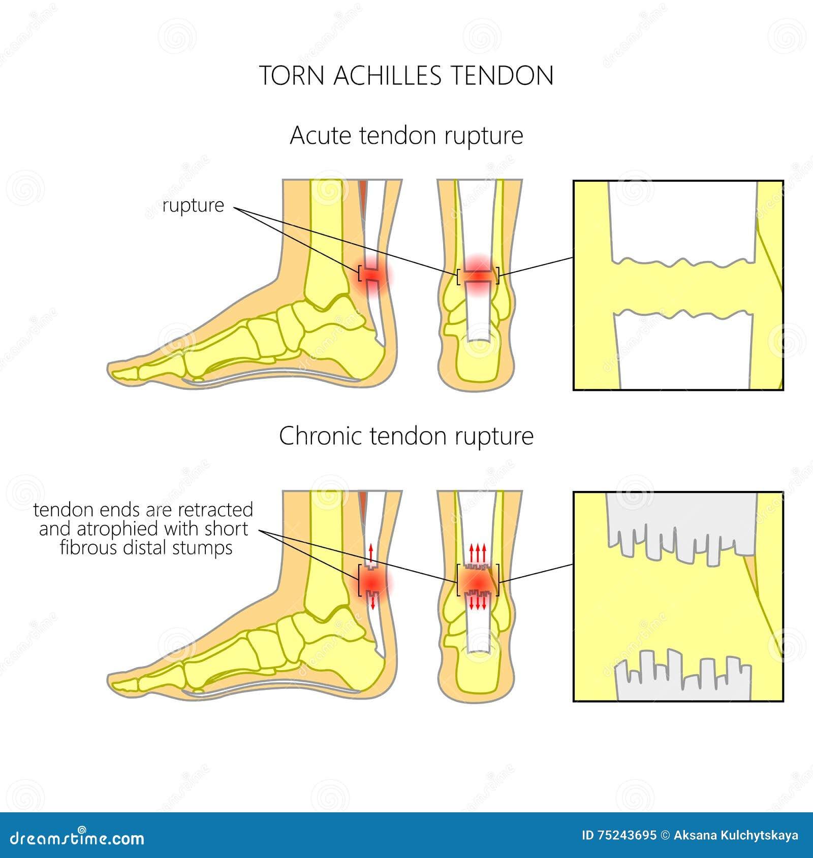 Tendine di Achille lacerato