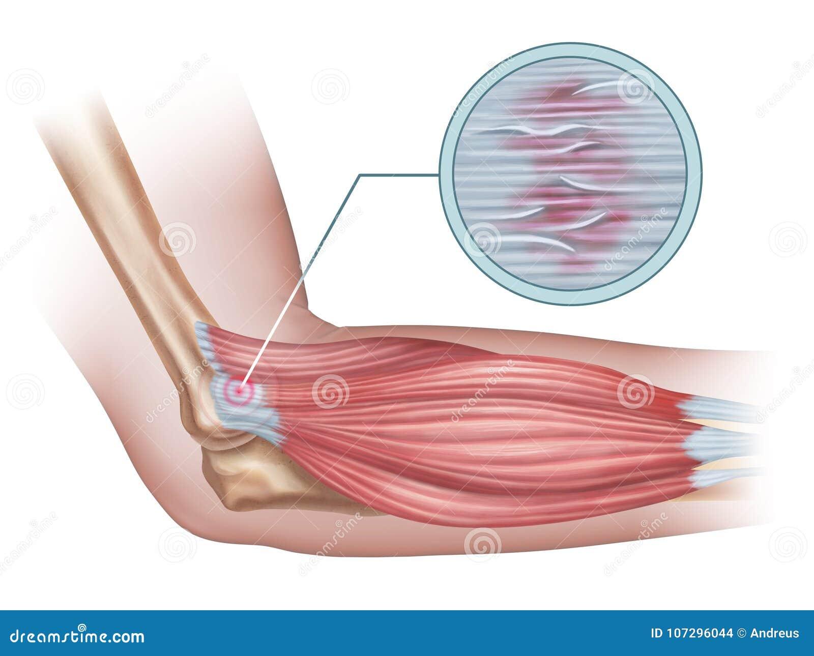Lateral epicondylitis stock illustration. Illustration of injury ...