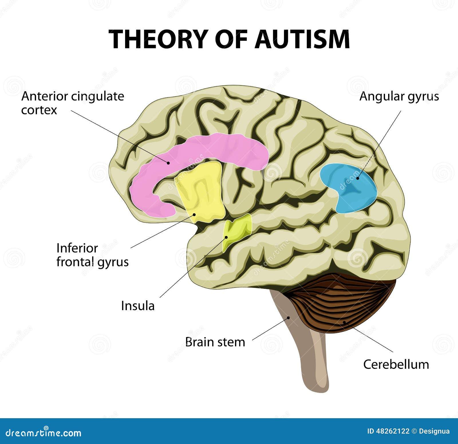 Teoria di autismo illustrazione vettoriale illustrazione di malattia 48262122 - Neuroni specchio e autismo ...
