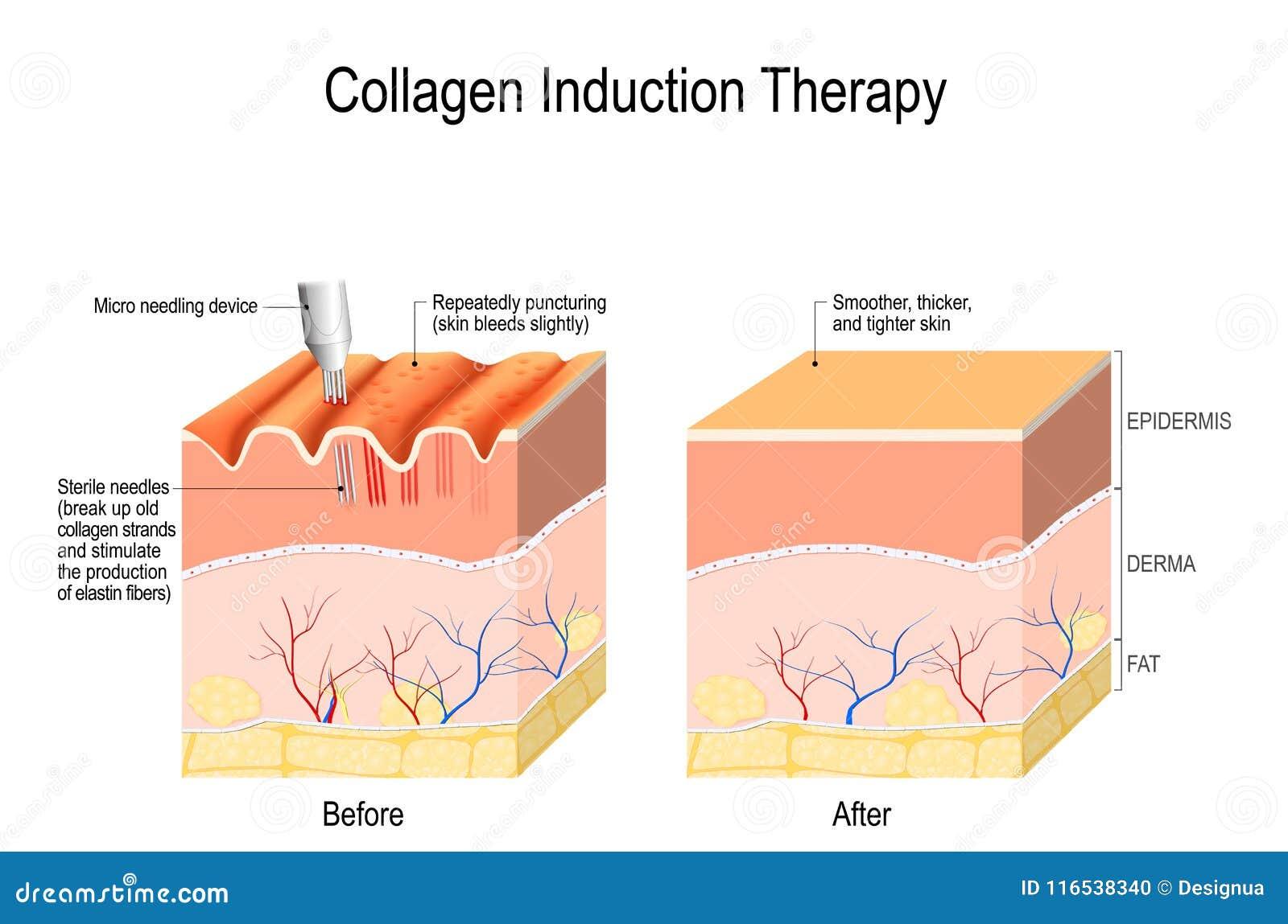 Terapia de indução do colagênio microneedling a pele
