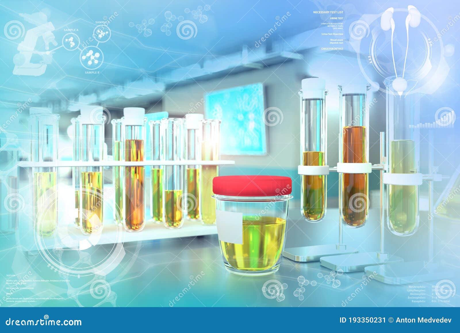 Test Tubes In Modern Microbiology Research Office Urine Quality Test For Ketones Or Kidney Disease Medical 3d Illustration Stock Illustration Illustration Of Clinic Orange 193350231