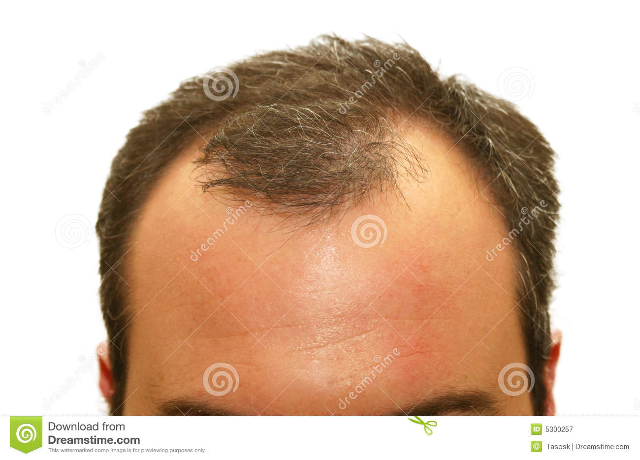 Download Testa Balding immagine stock. Immagine di umano, people - 5300257