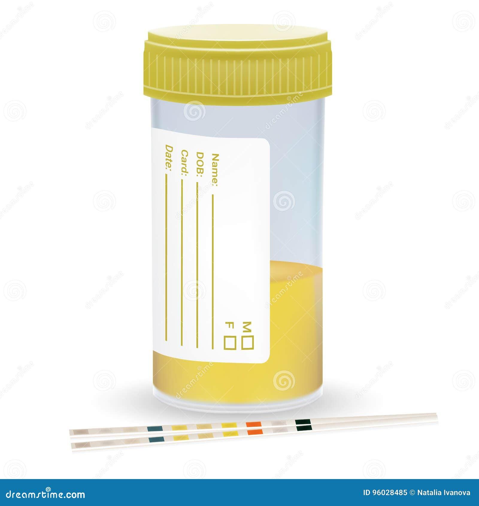 Testa Moczu pasek Z Plastikowym słojem uryna Badanie Medyczne Na Białym tle Realistyczny wektor