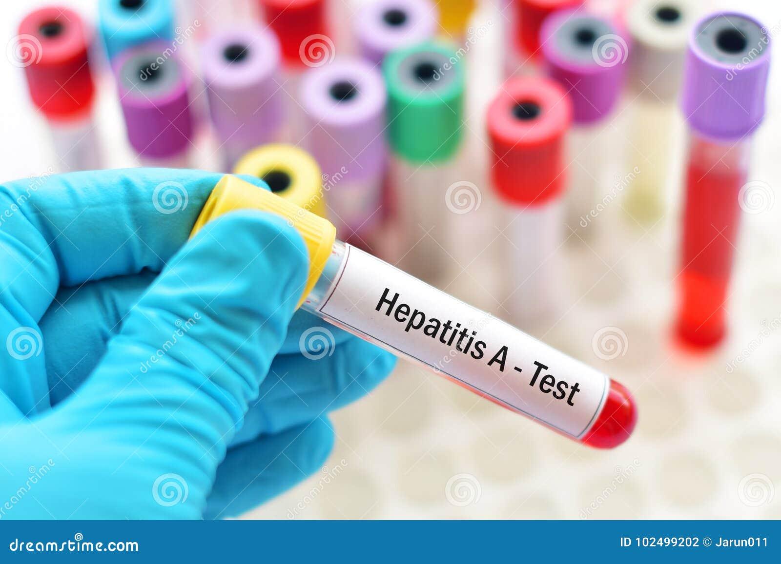 Teste da hepatite A
