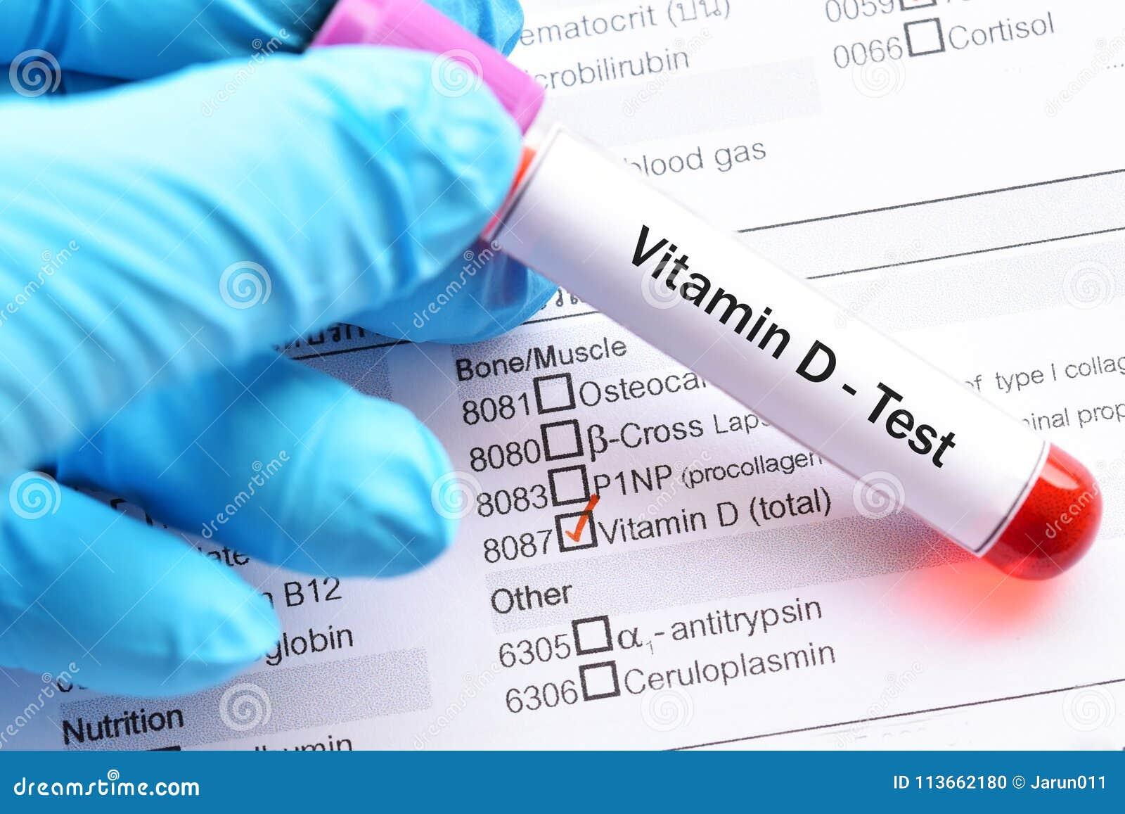 Teste da vitamina D