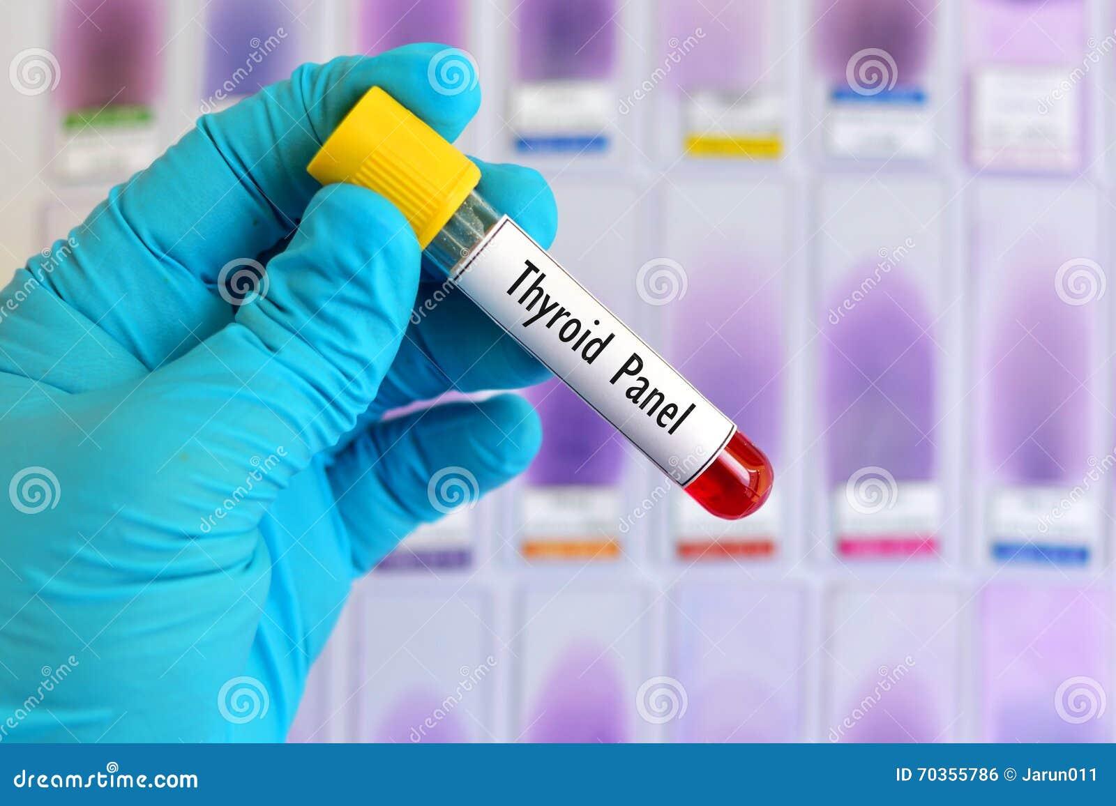 Teste de painel do tiroide
