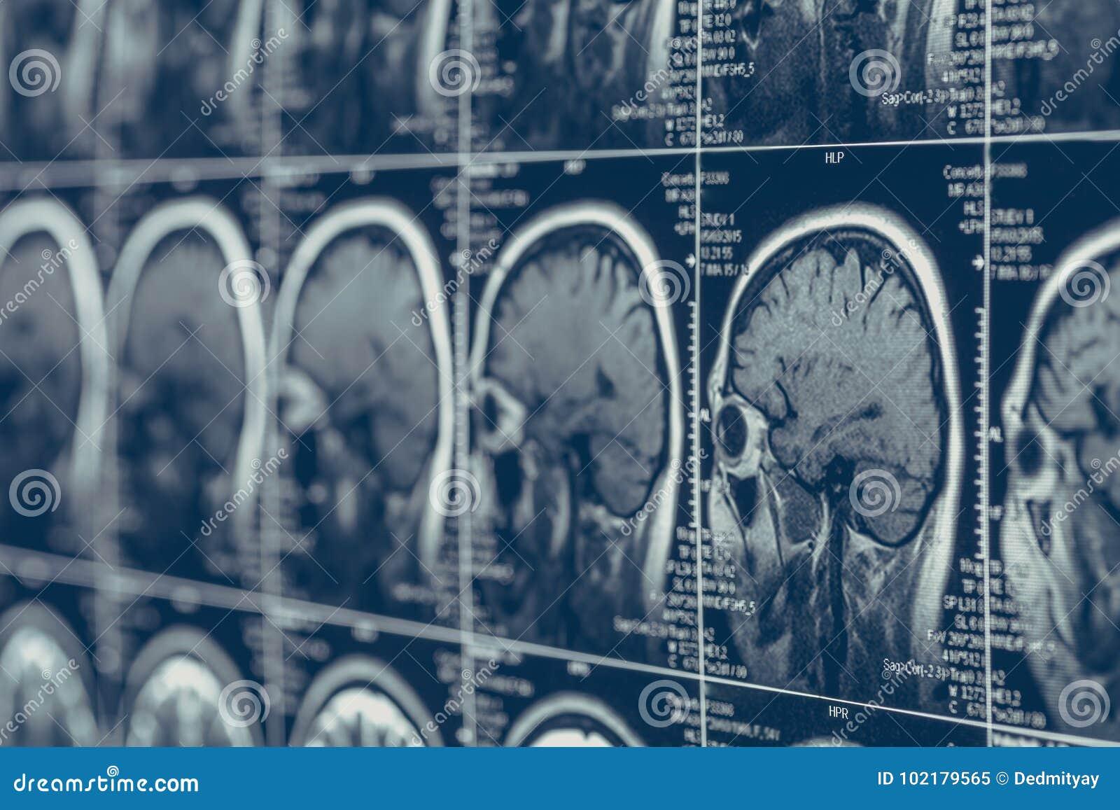 Teste do tomografia do crânio da cabeça humana da neurologia da varredura ou do raio X de cérebro de MRI