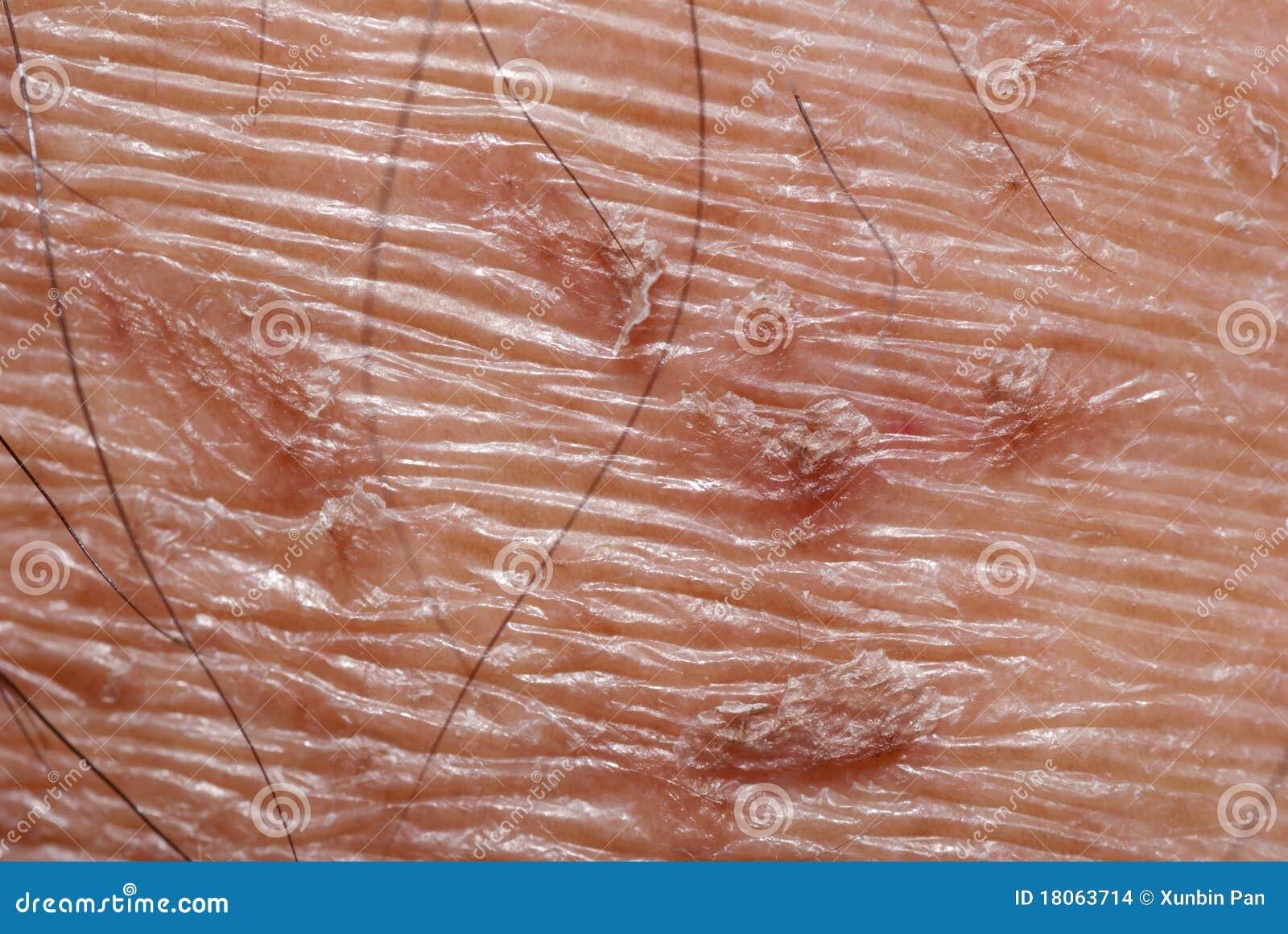 texture de peau s che photo stock image du image dermatologique 18063714. Black Bedroom Furniture Sets. Home Design Ideas
