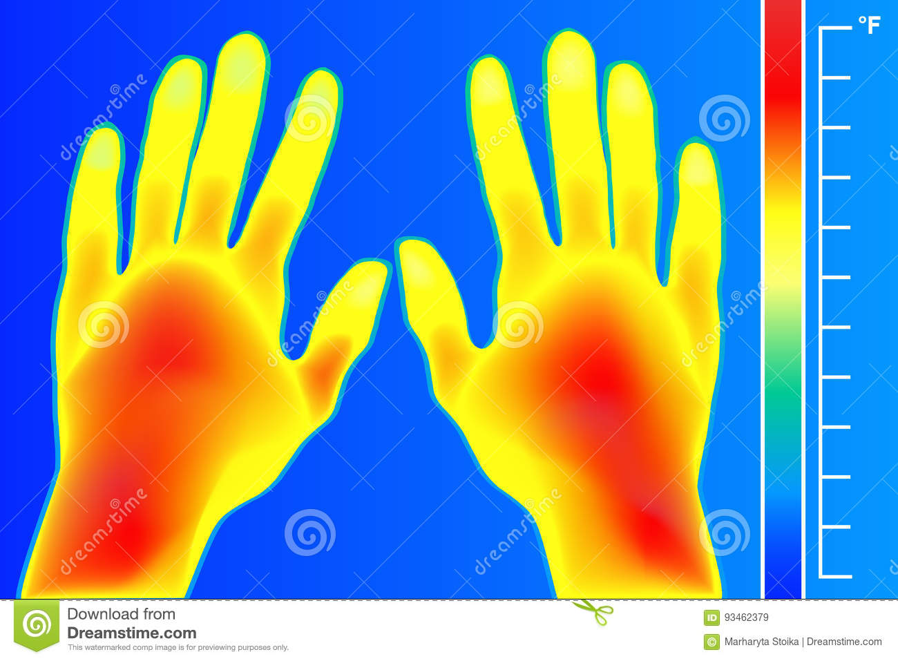 Thermal Imager Human Hands And Finger The Image Of A Arms Using