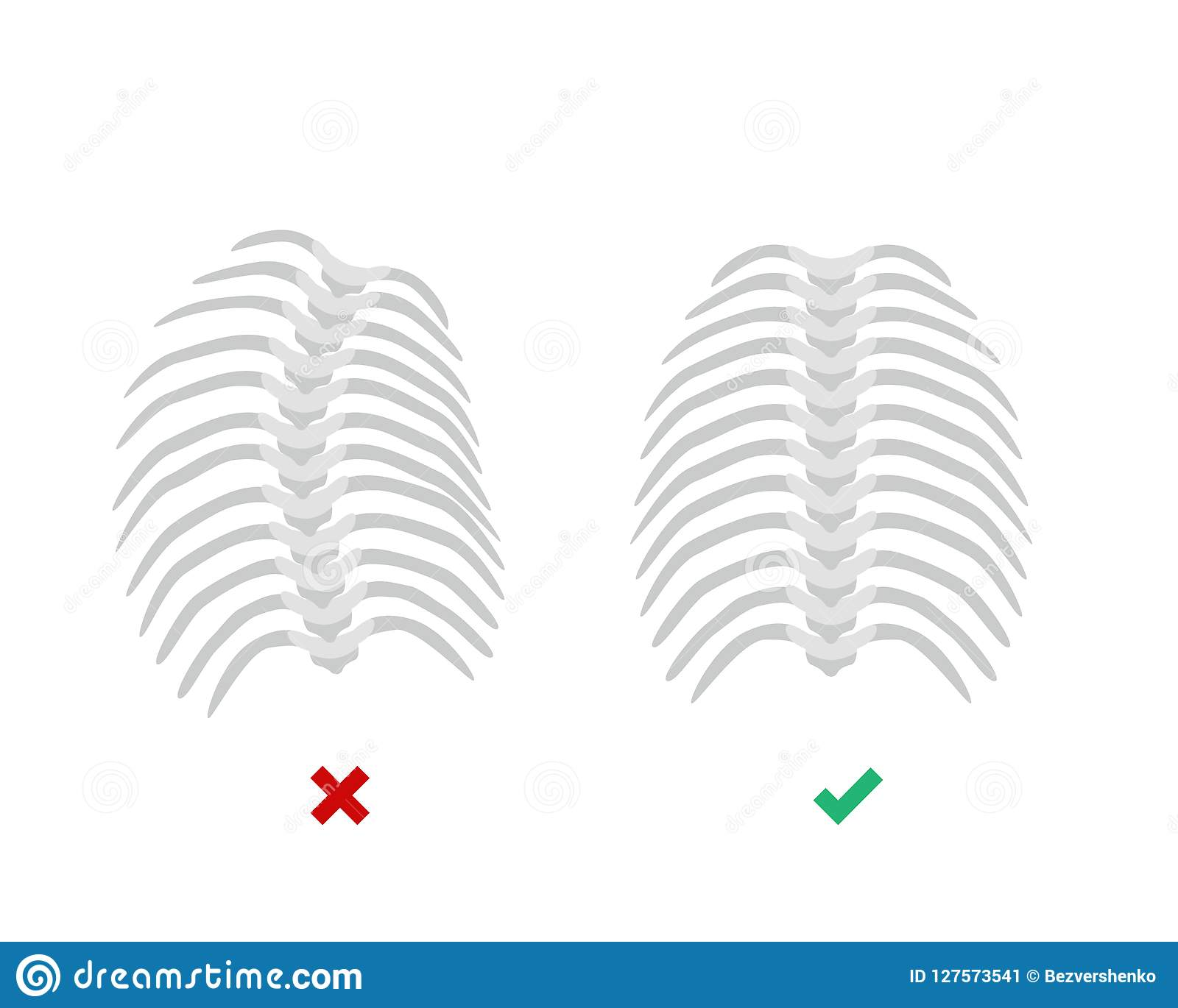 Thoracic Scoliosis on the thoracic spine and straight backbone concept vector illustration in flat design isolated on