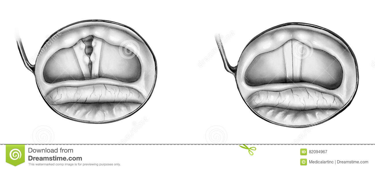 Epiglottis Cartoons  Illustrations  U0026 Vector Stock Images