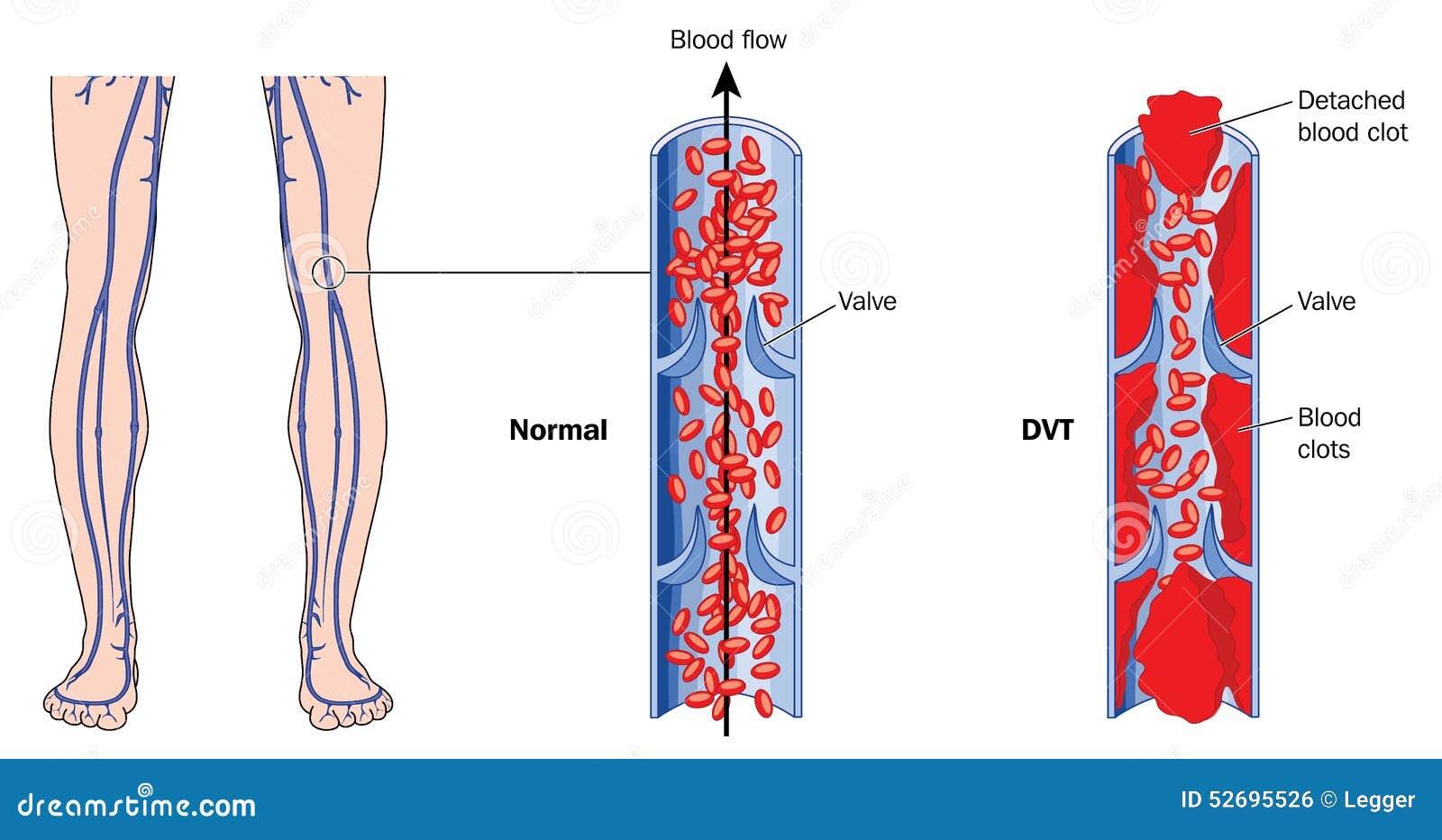Diagnosi di sintomi di varicosity