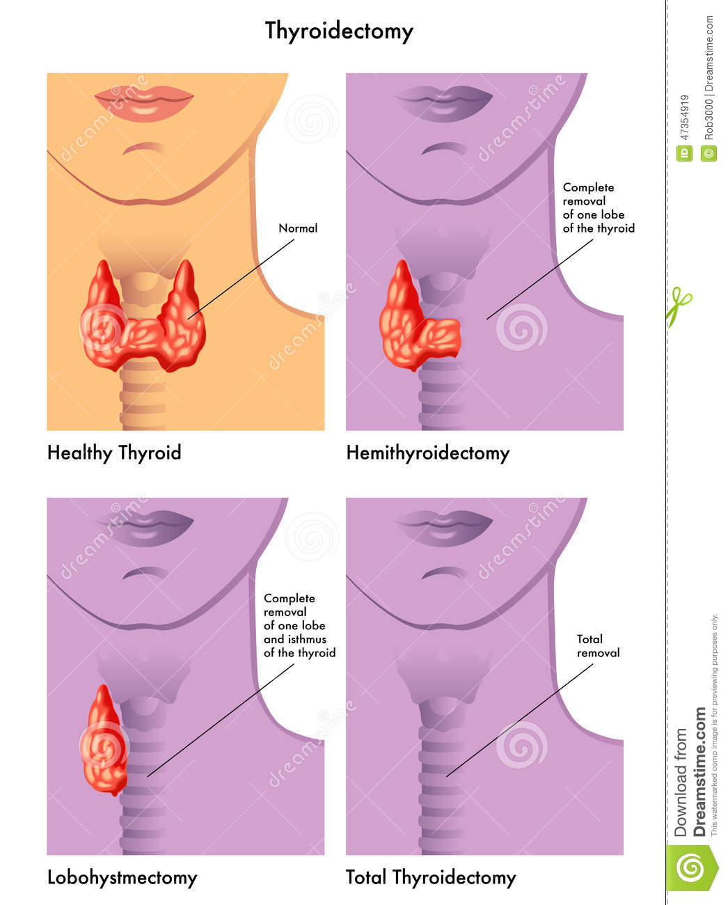 thyroid lobectomy Looking for online definition of lobectomy in the medical dictionary lobectomy explanation free a surgical procedure that removes one lobe of the thyroid.