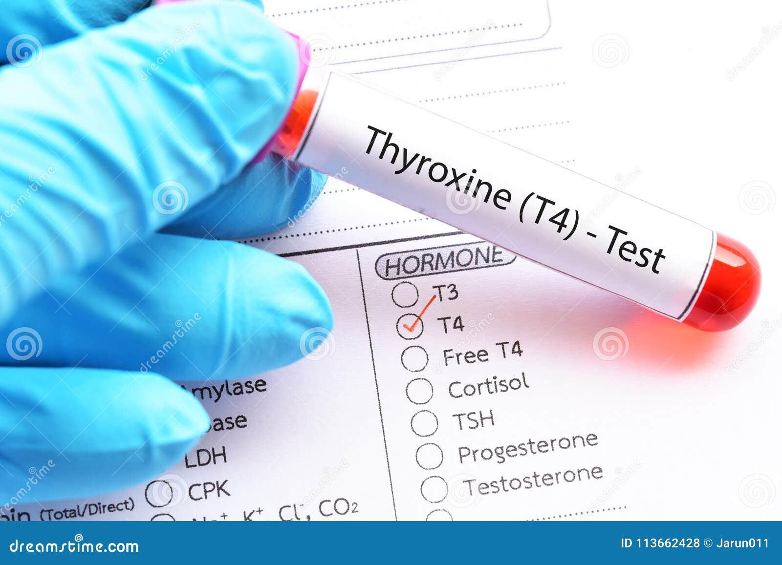 Thyroxine Hormone Test Stock Photo Image Of Hyperthyroidism