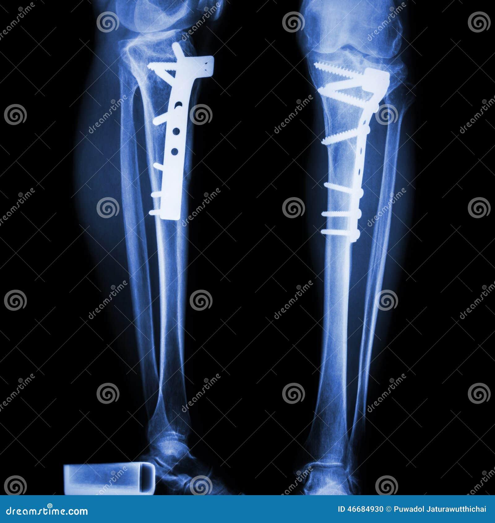 Tibia de fracture (os de jambe) Il a été actionné et fixe interne