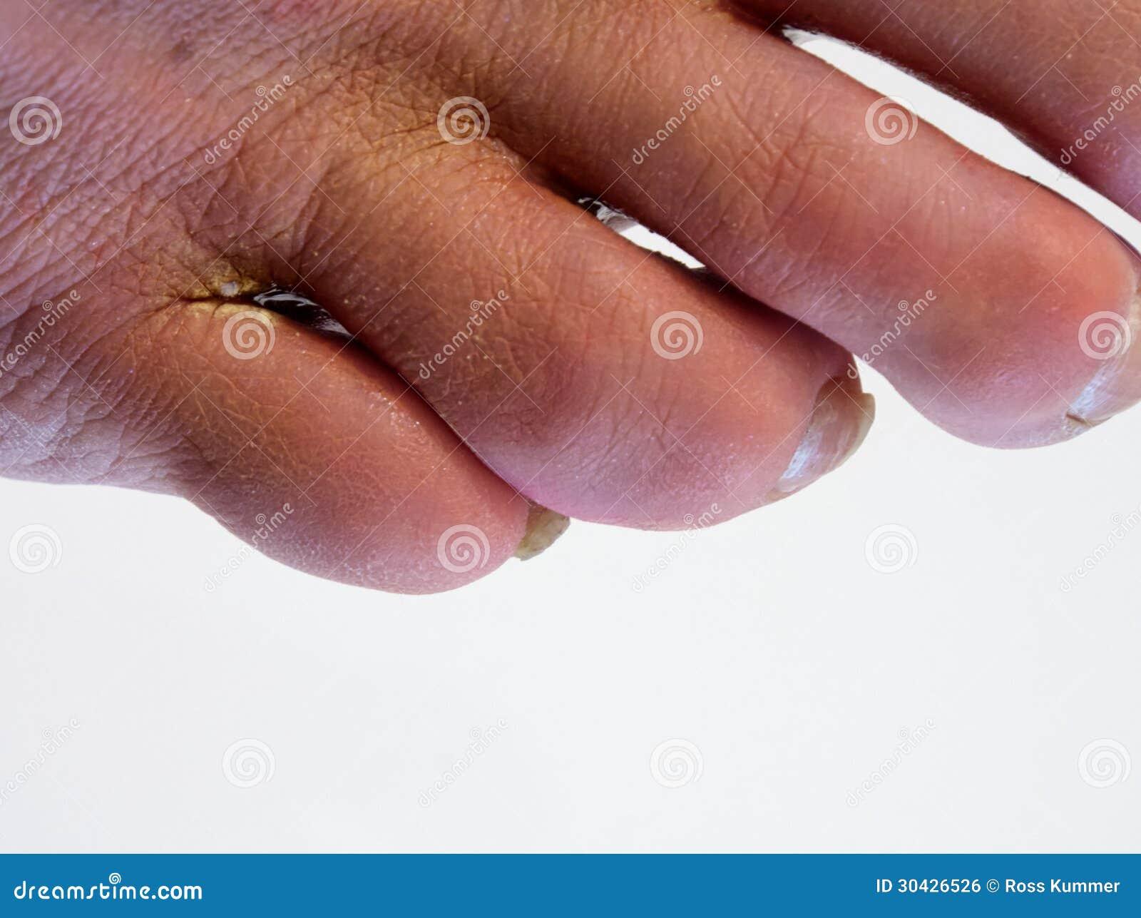Targhe da un fungo di unghie e posizione di piede