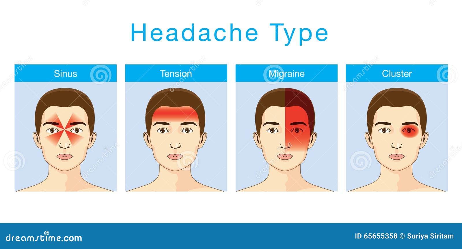 tipo de dor de cabe u00e7a ilustra u00e7 u00e3o do vetor  ilustra u00e7 u00e3o de