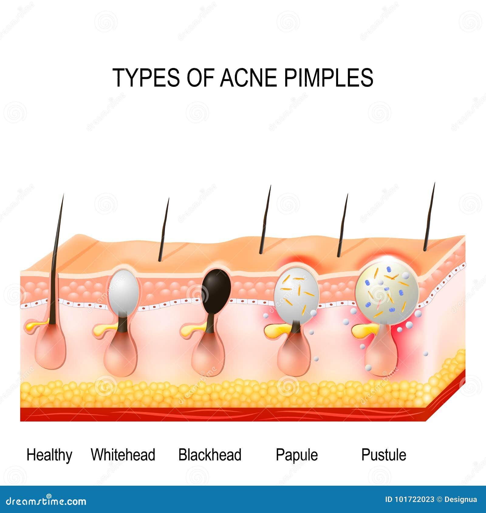 Tipos de espinhas da acne