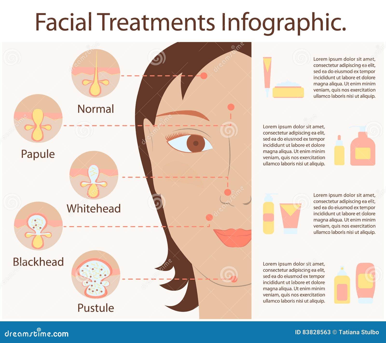 Tipos de espinillas del acné