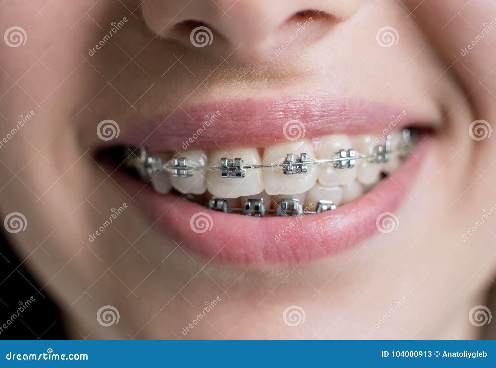 Tir en gros plan des dents avec des accolades Patient féminin avec des parenthèses en métal au bureau dentaire Demande de règleme