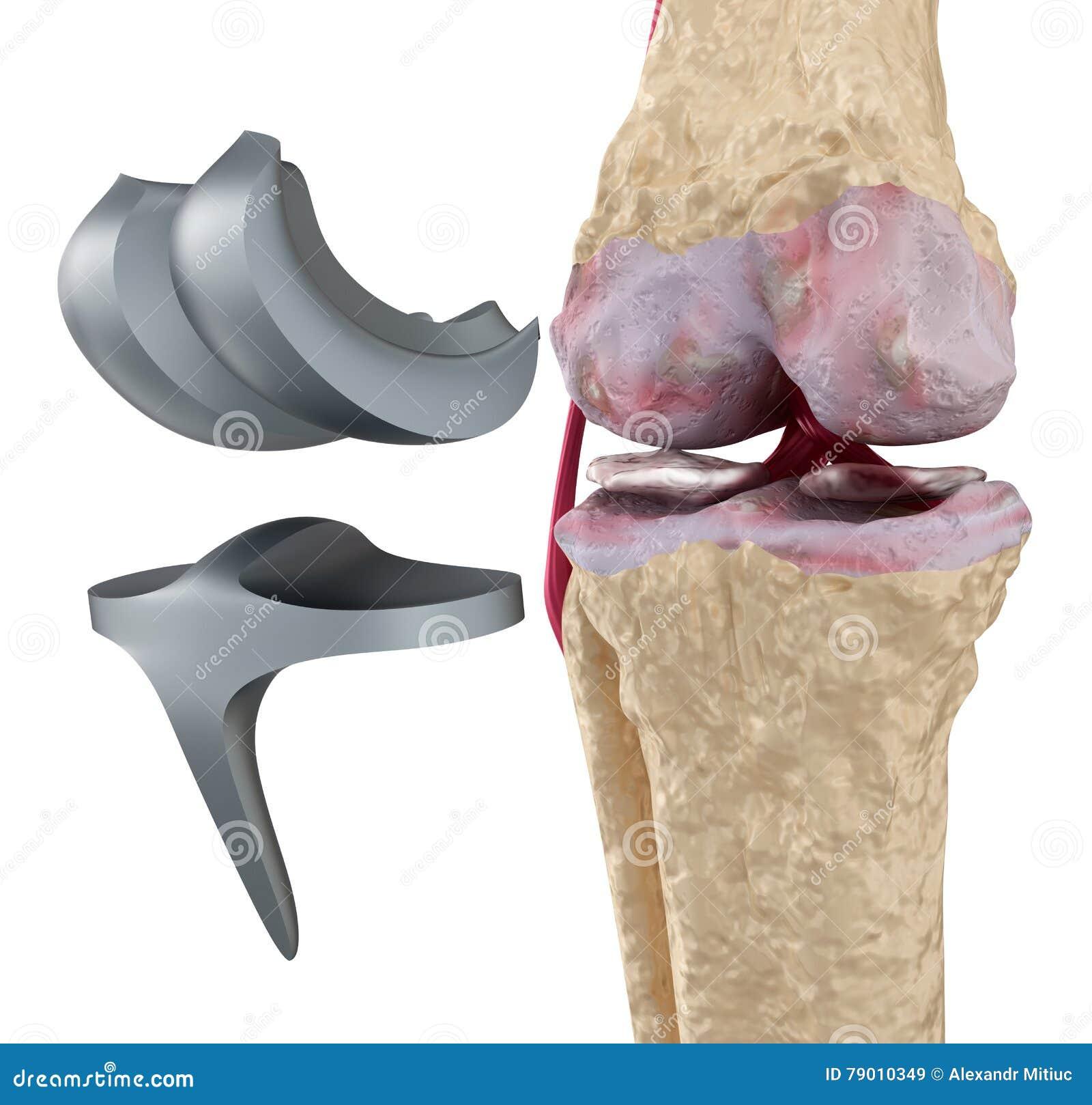 Titanium för knä för gångjärnskarv isolerat