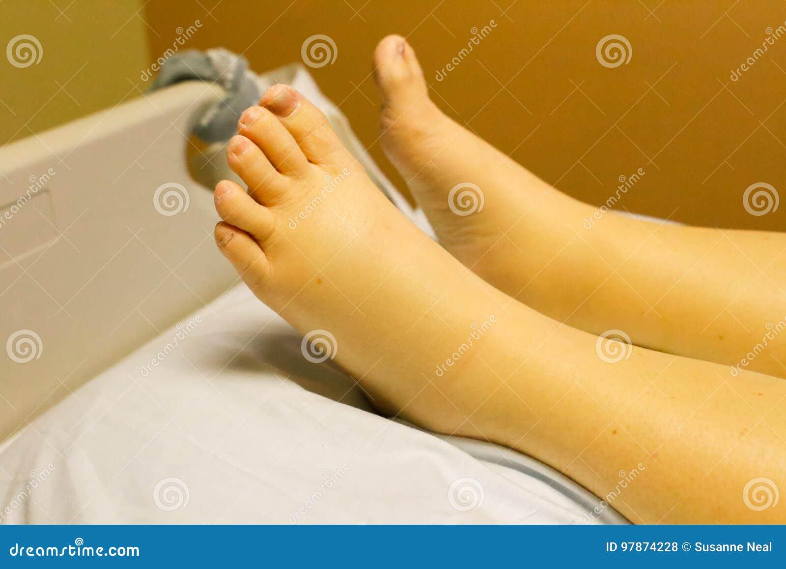 La mejor manera de ayudar a los pies hinchados