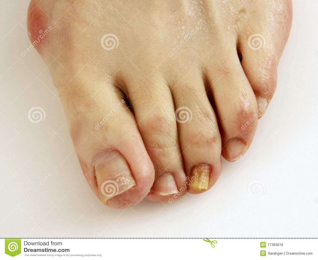 Download Toenail Fungus Stock Photo Image Of Problems