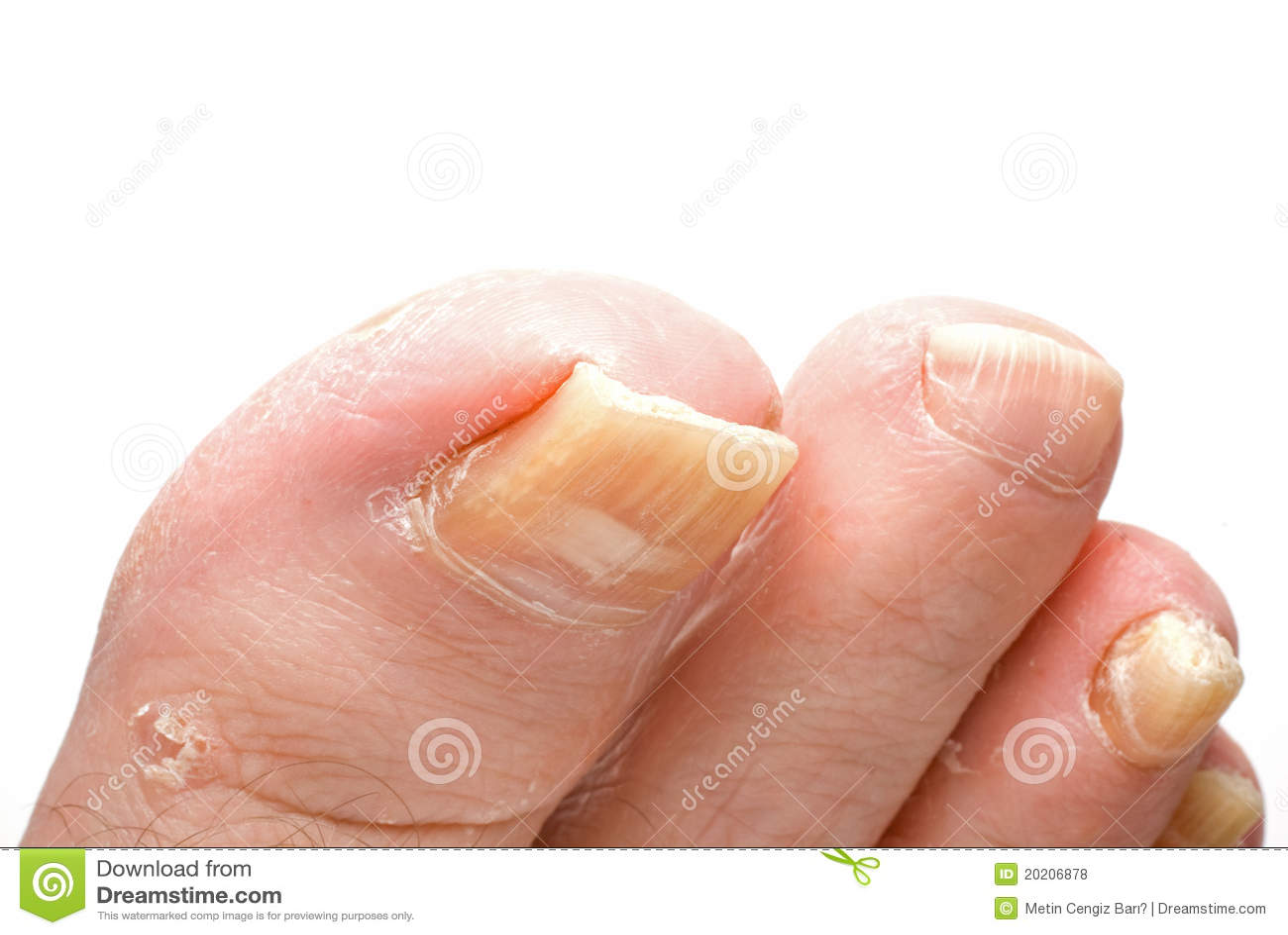 Toenail Fungus stock photo. Image of foot, white, medicine