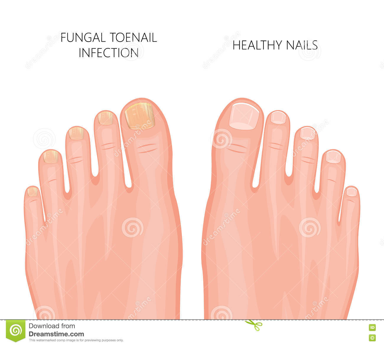 ToeNail fungus stock vector. Illustration of barefoot - 75016177