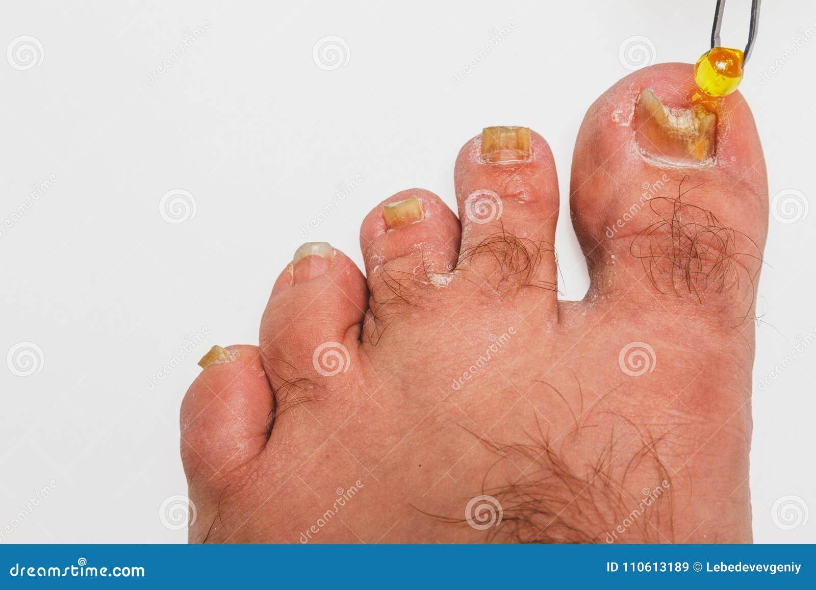 A toenail fungus stock image. Image of fungal, healthcare - 110613189