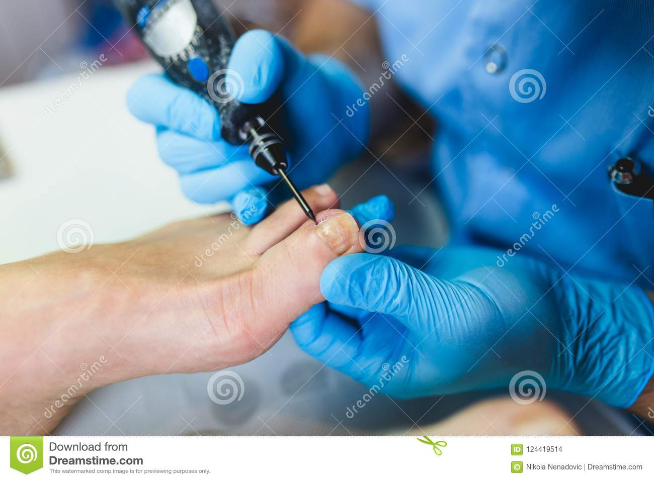 Medical toenail treatment stock photo. Image of device - 124419514