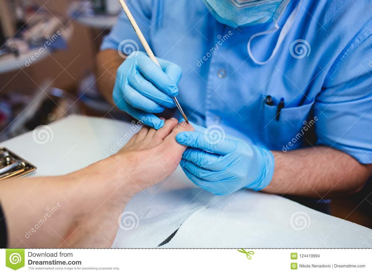 Medical toenail treatment stock photo. Image of dermatology - 124419994