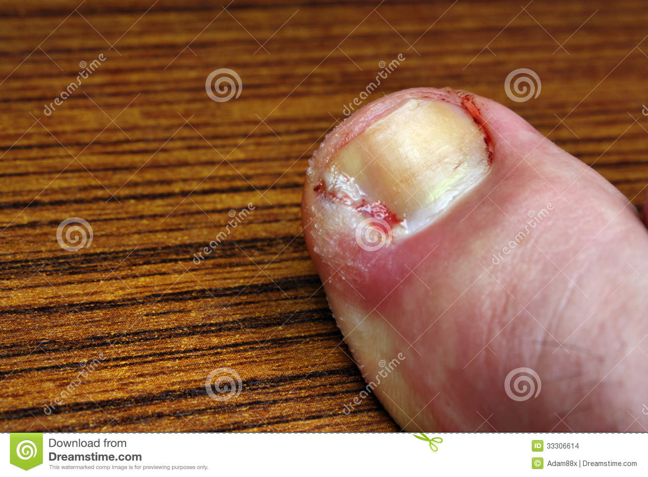 Toenail stock photo. Image of pedicure, deformed, chipped - 33306614