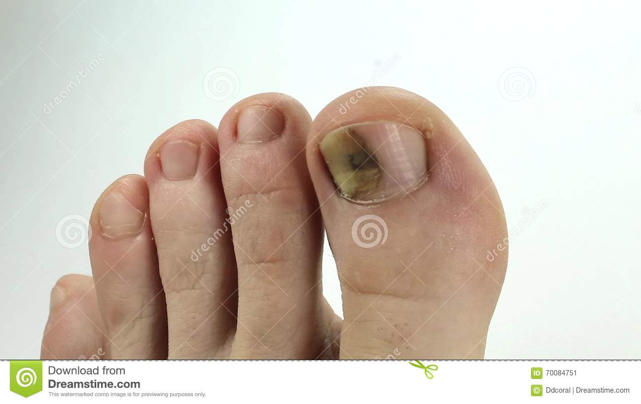 Toenails With Fungal Infection. Sick Nail. Fungus Of Big Toe Stock ...