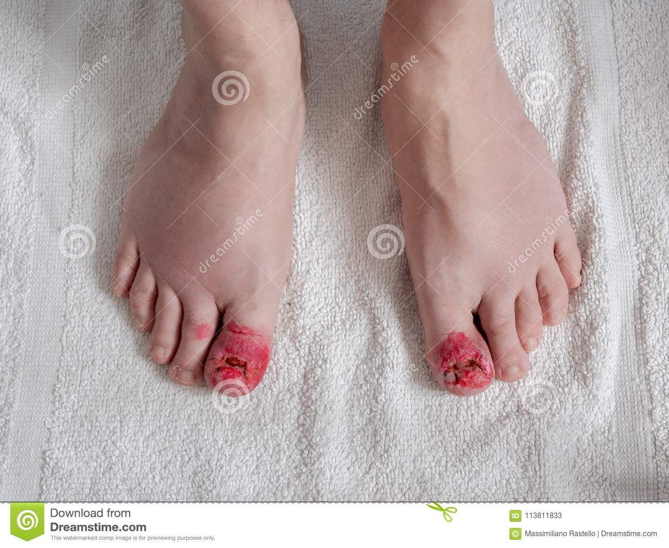 Toes Appearance After Ingrown Nail Surgery Stock Image - Image of ...