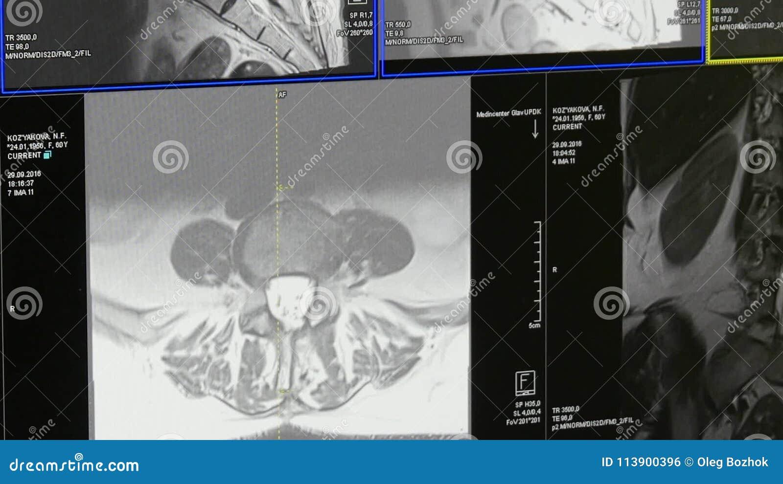 Tomographie Des Rückenmarks Und Der Wirbelsäule Auf MRI Scannen ...