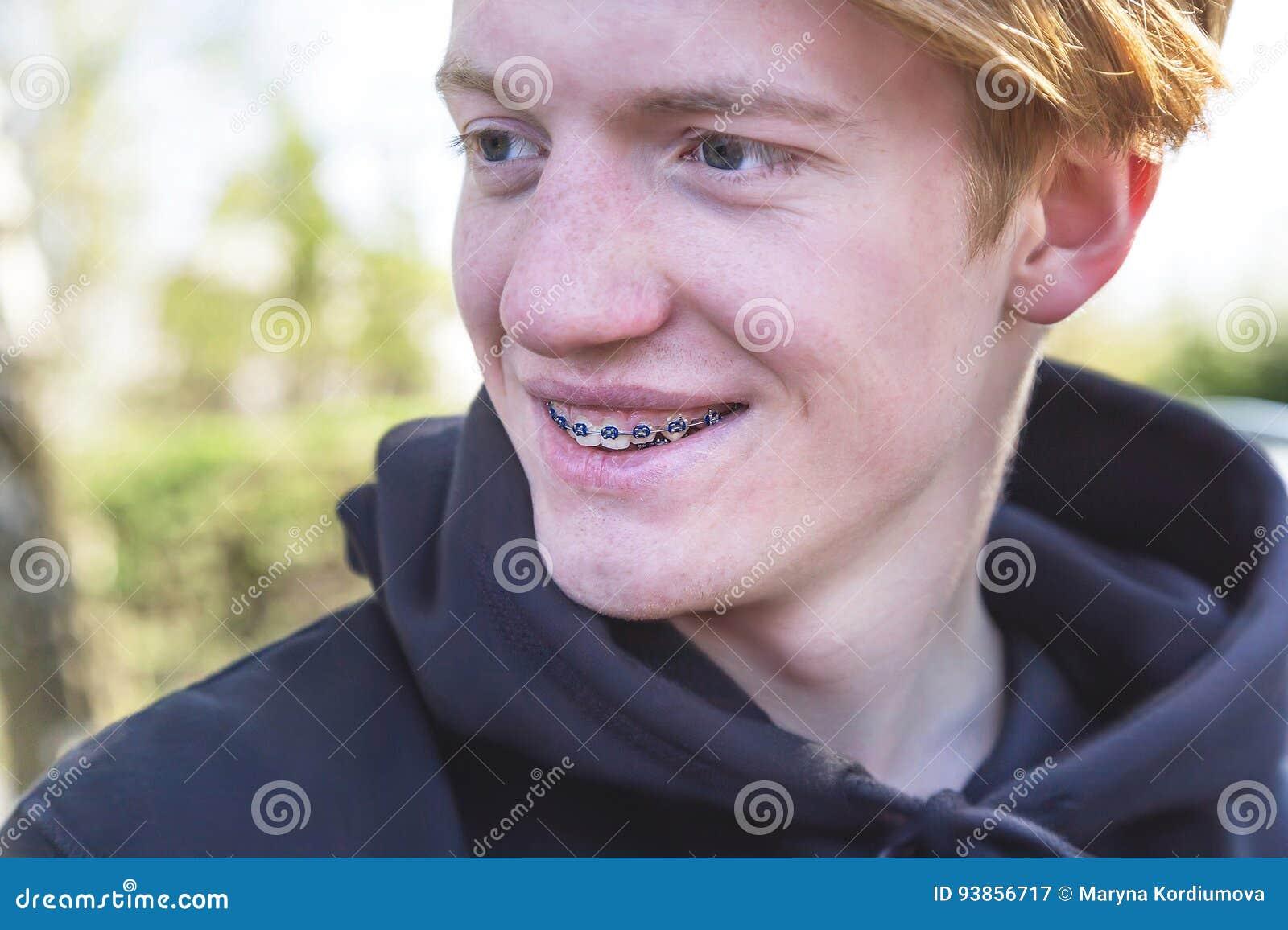 Tonårig pojke för lycklig tonåring med tand- hänglsen Roligt uttryck
