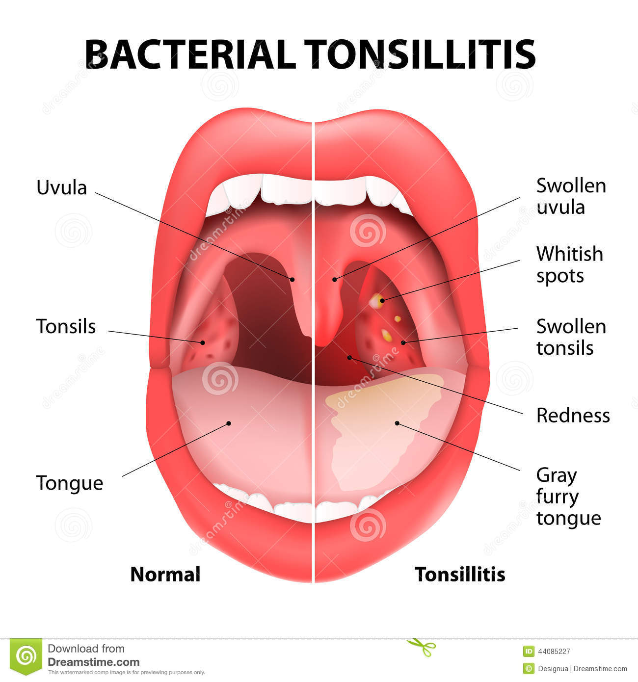 Tonsillitis bacterial stock vector. Illustration of barr - 44085227