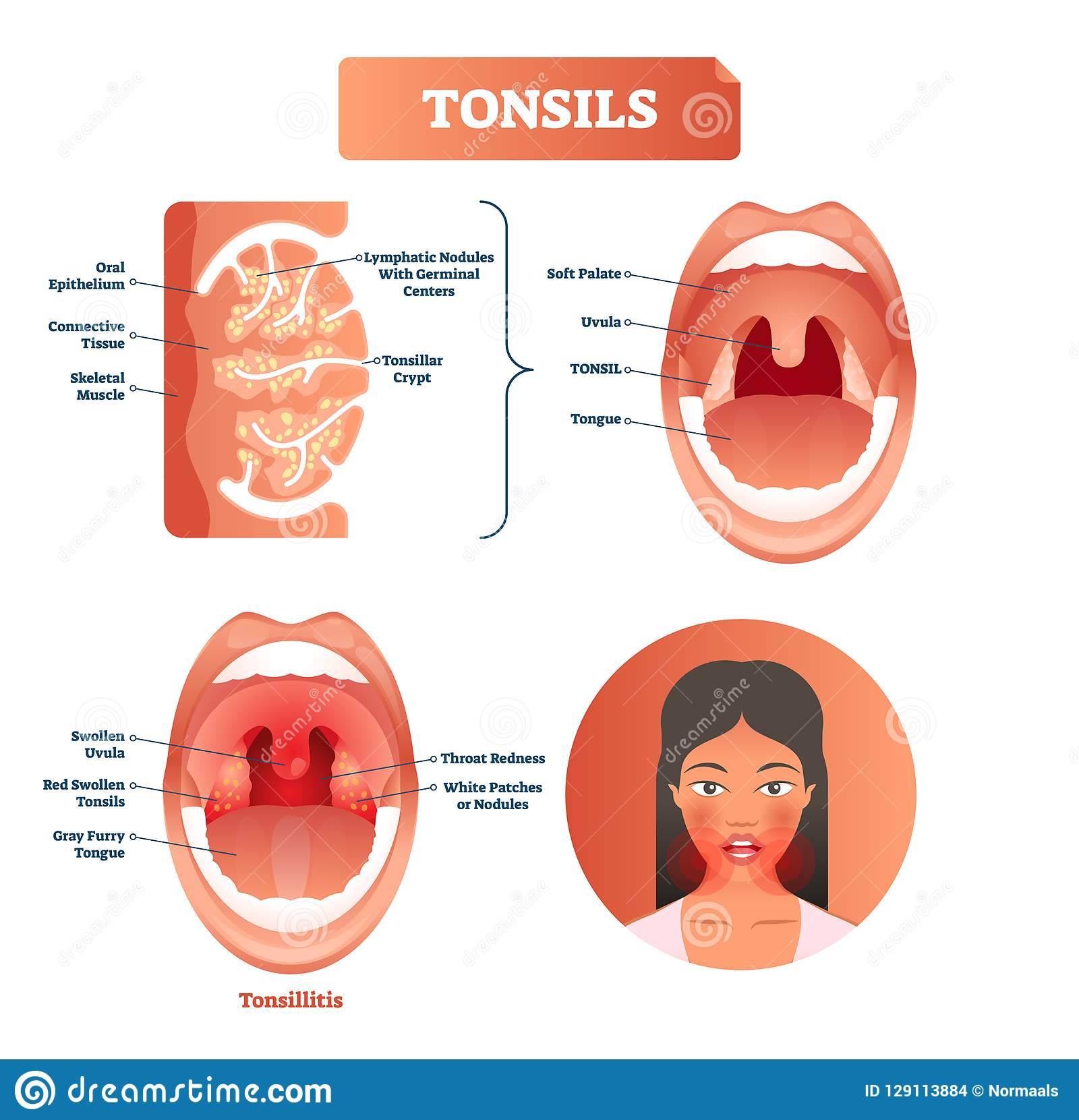 Tonsils Vector Illustration. Tonsillitis Labeled Structure