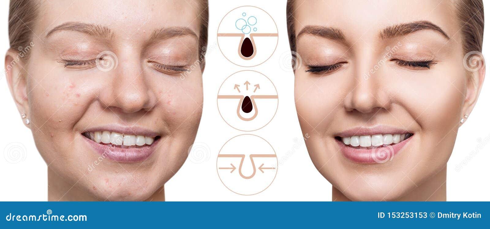 Toont grafisch om de poriën op gezicht te verontreinigen en schoon te maken